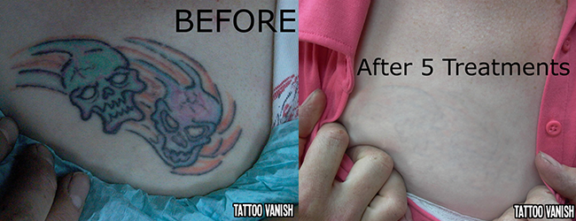 Tattoo Removal | Lasting Impressions Permanant Makeup & Tattoo Removal |  Tucson, AZ | 5203037025
